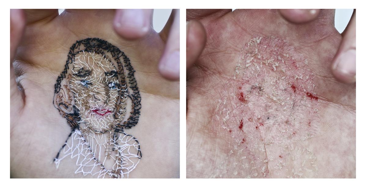 Mi prima María. A flor de piel, 02. Baritado sobre dibond. 50x50 cm c/u. 2012